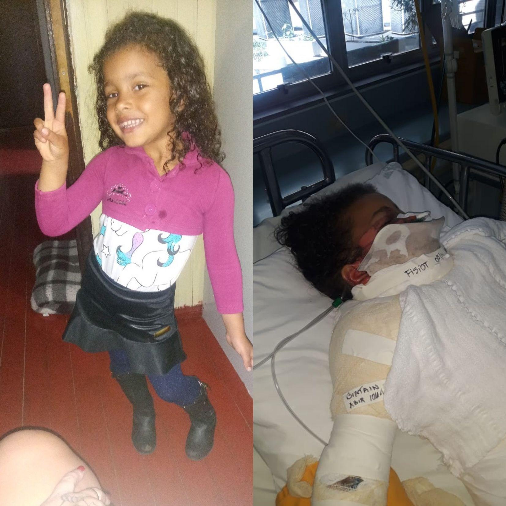 Menina de 4 anos precisa de ajuda após sofrer queimaduras de terceiro grau